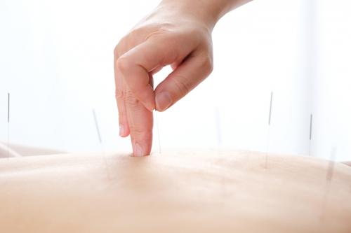 世界保健機関(WHO)が認める鍼灸治療